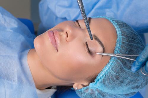 まぶたの手術を受ける女性